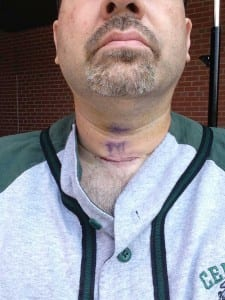 David Esrati's neck after parathyroid surgery